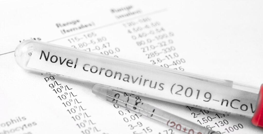 coronavirus, novel coronavirus, 2019 n-cov, wuhan coronavirus, what is the coronavirus, what is the 2019 novel coronavirus, can i get the coronavirus