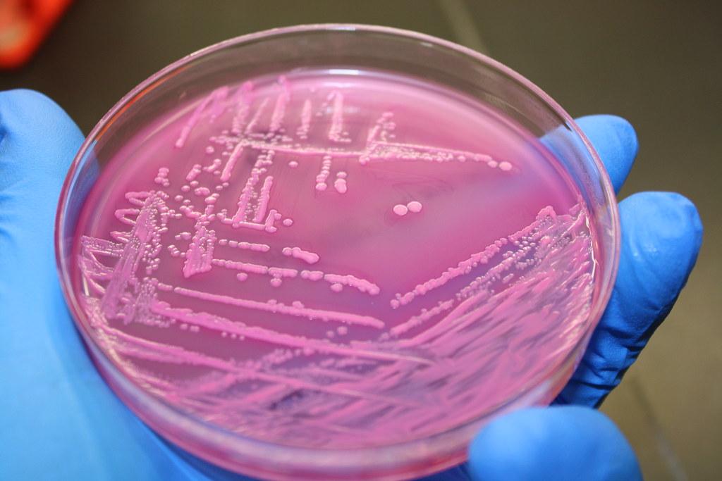 e coli on a pink petri dish